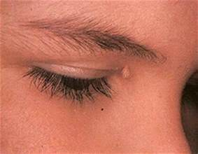 aayurvedic treatment for eyelid wart picture 5