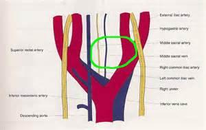 bladder procedures picture 17