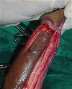 penis disorders picture 3