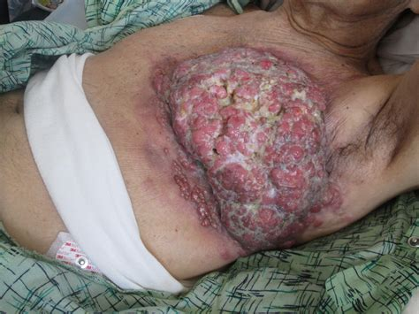 sore under skin on leg picture 6