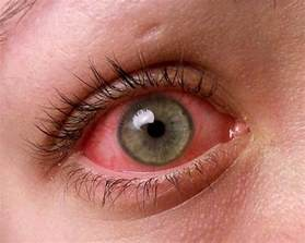 bacterial pink eye picture 6