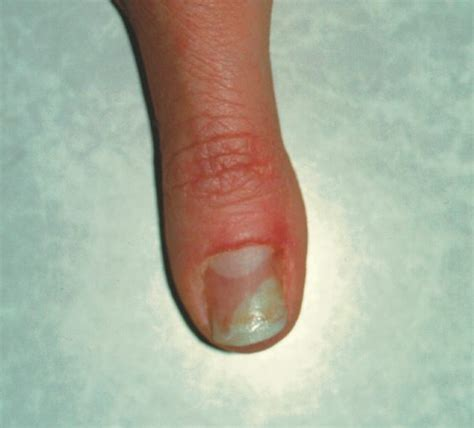 finger nail fungus lysol picture 14