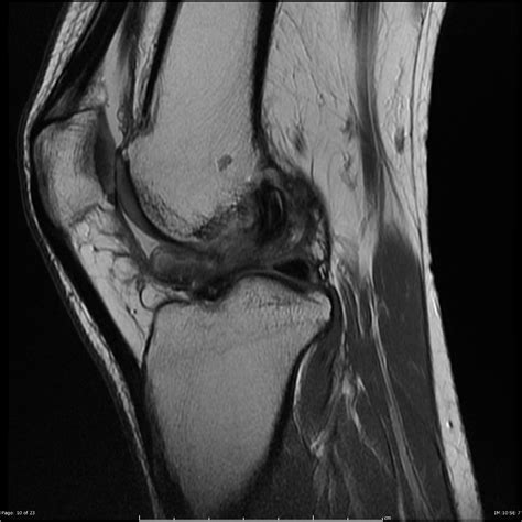 cyclops lesion knee joint picture 17