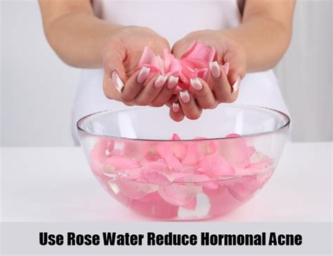 rose water for acne picture 7