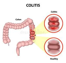 inflammation of the colon picture 9