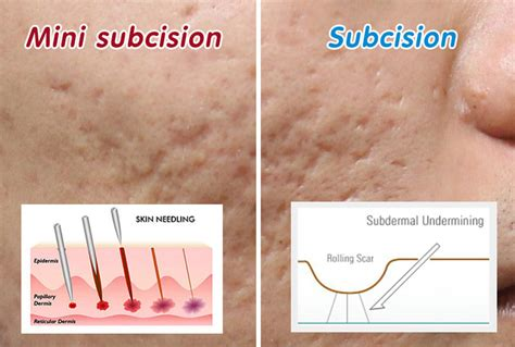 subcision acne scars california picture 15