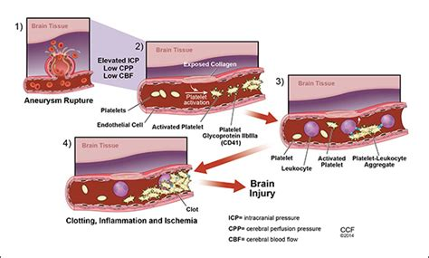 low blood pressure brain aneurysm picture 6
