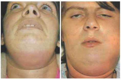 abcessed teeth and neck pain picture 9