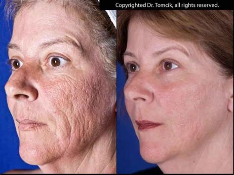 dr michael gray acne scar removal picture 9