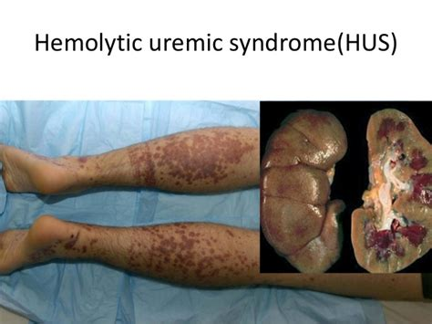 hemolytic uremic syndrome bowel ultrasound picture 6
