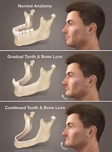 calcium loss in teeth picture 14