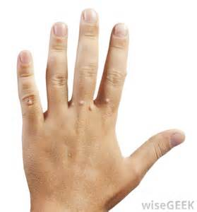 warts in the palm of your hand picture 13