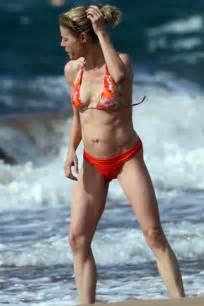 virginia beach breast augmentation picture 5