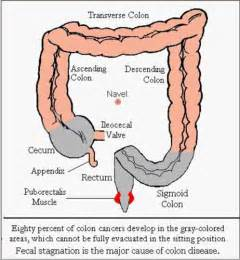 colon cancer surgery picture 6