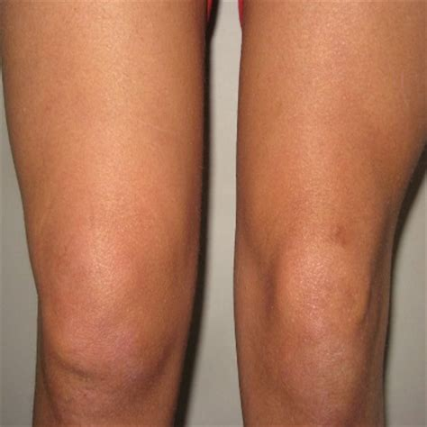 knee joint swelling picture 3