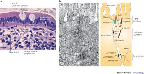 intestinal mucosal dysfunction picture 6