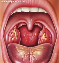 herpes in nose with back pain picture 11