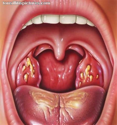 how can i treat a yeast infection at picture 14