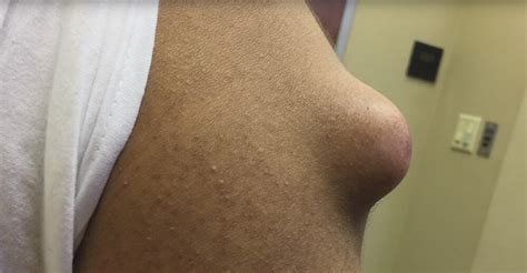 what is cystic acne picture 13