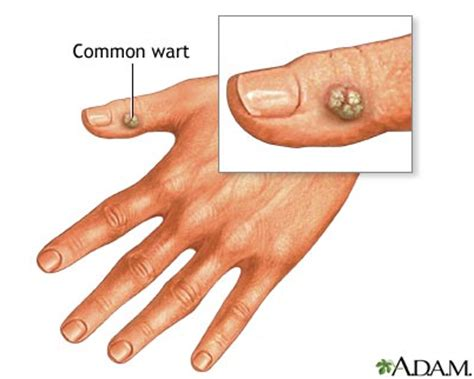 common warts picture 17