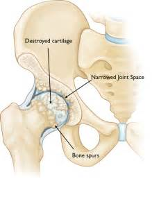 does prednisone damage hip joint picture 13