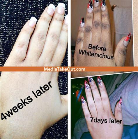 whitenicious skin cream cost picture 10