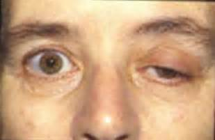 muscle eye problems picture 10