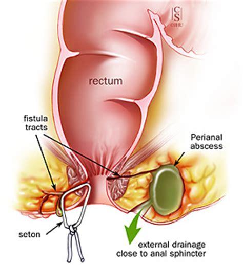 perineum excess skin picture 7