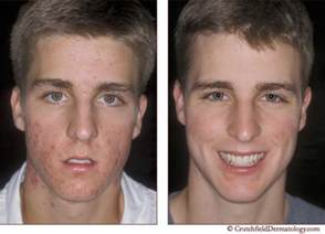 before and after gainer acne picture 6