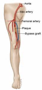 clogged veins in legs of diabetics picture 3