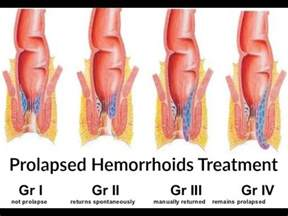 cure hemorrhoids 9 rhcloud have piles picture 1
