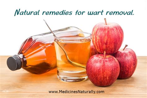 natural remedy for wart removal on lip picture 5
