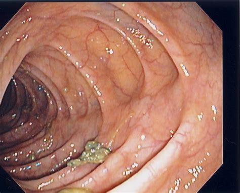 colon check picture 2