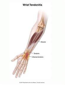 home remedy for finger joint injury of apa picture 17