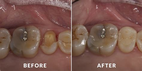 fix teeth picture 5