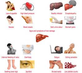 signs and symptoms liver failure picture 9