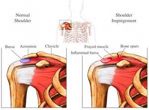 joint impingement syndrome shoulder diagnosis treatment picture 9