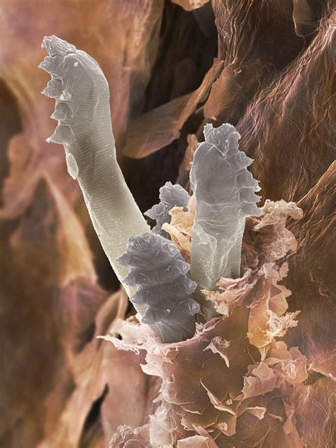 worms in human and acne picture 1