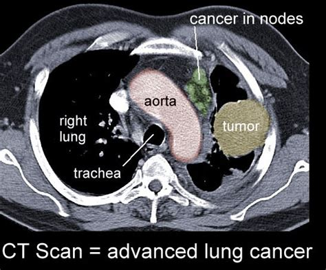 can a cat scan see colon cancer picture 7
