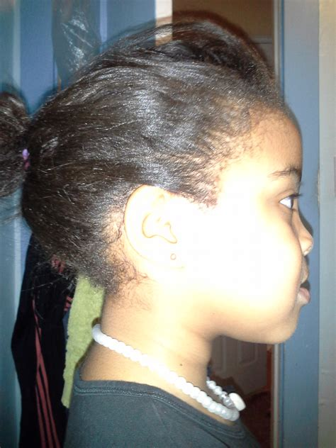 african american hair care dandruff picture 3