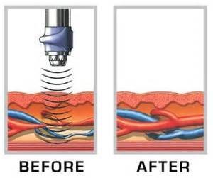 phallus blood vessels sound treatment picture 6