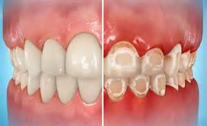 decalcification of teeth picture 9