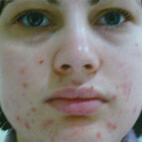 acne treatments picture 1