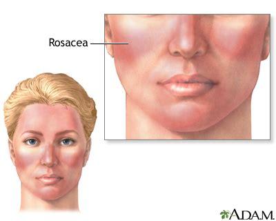 rosacea etiology picture 10