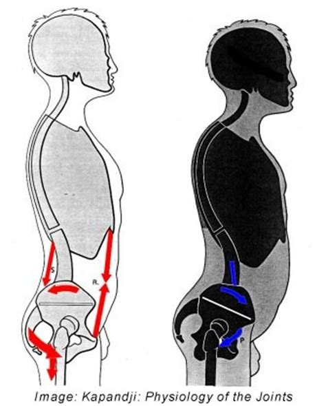 low back pain picture 10