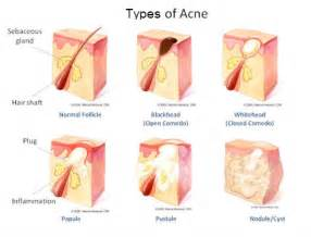 chemicallin the treatment of acne picture 2