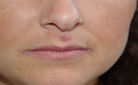 causes of cystic acne picture 6