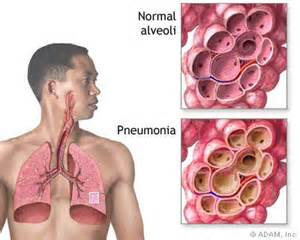 Bacterial pneumoniam picture 7