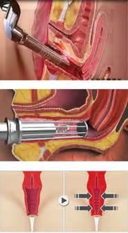 liver spots inside vulva cause for concern picture 13