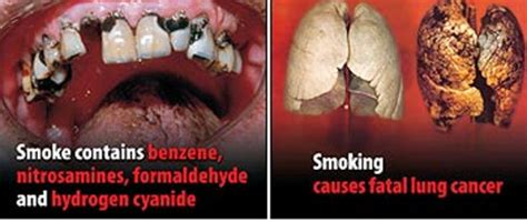 what affect does smoking have on healing after picture 13